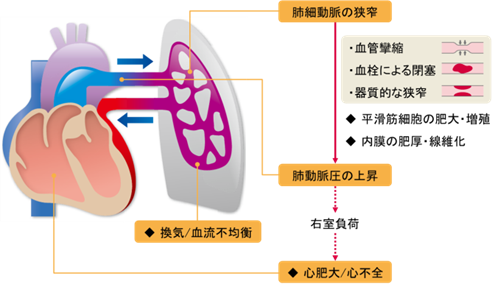 肺 高血圧 症
